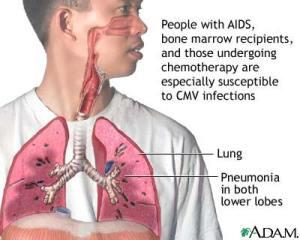Obat alami infeksi paru-paru