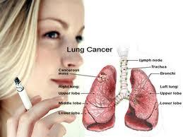 obat alami kanker paru