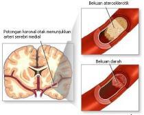 Pengobatan penyakit stroke di kepala